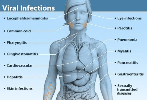 Illustration of common viral infections and what region of the body they affect.