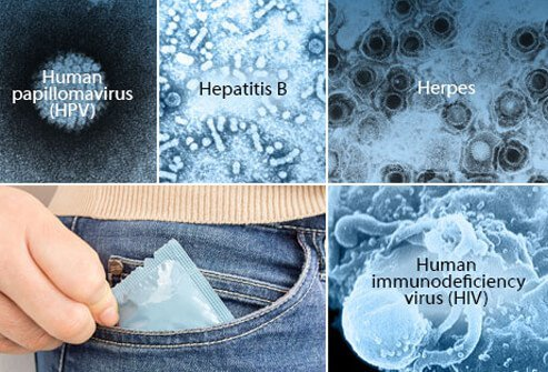 A collage of sexually-transmitted viral infections such as human papillomavirus (HPV), hepatitis B, herpes, human immunodeficiency (HIV) and a condom.