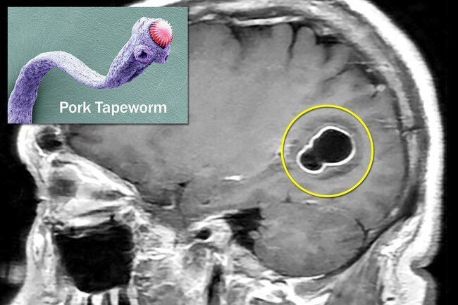 Infection with pork tapeworm may lead to cysts in the brain, muscles, liver, and other organs.