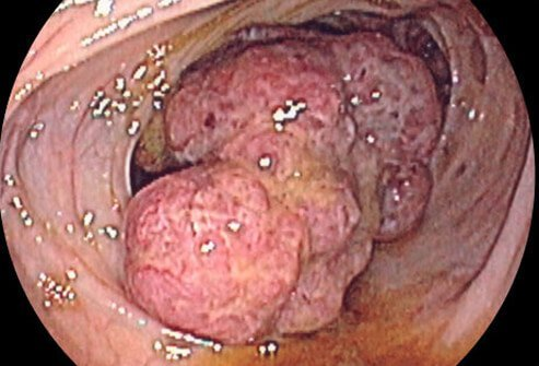Endoscopic image of colon cancer.