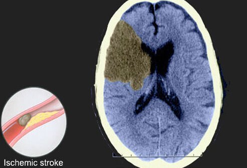 CT scan showing ischemic stroke.
