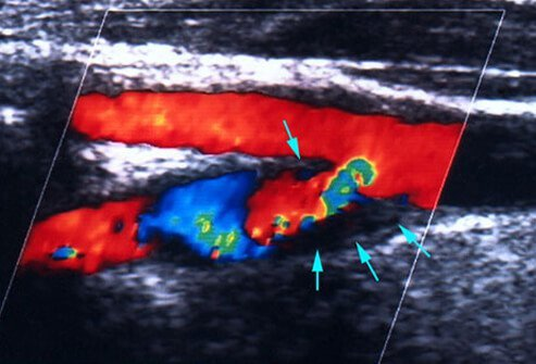 An ultrasound showing mini-stroke (TIA).
