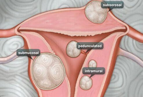 We present information on the various types of uterine fibroids.