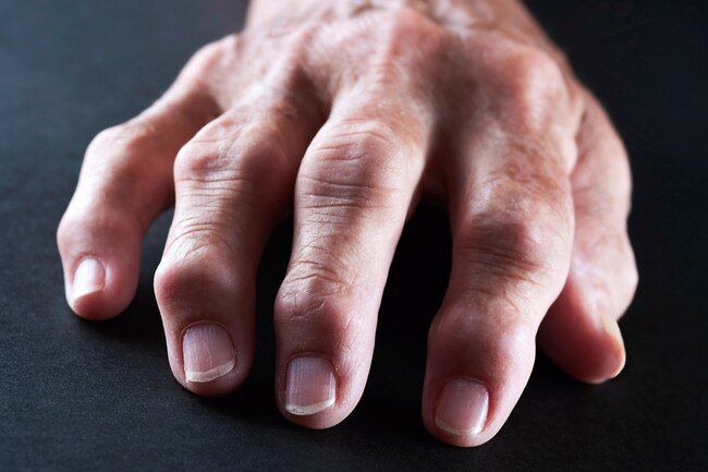 Cat's claw boosts immunity and it may also help ease swelling and pain in those with RA.