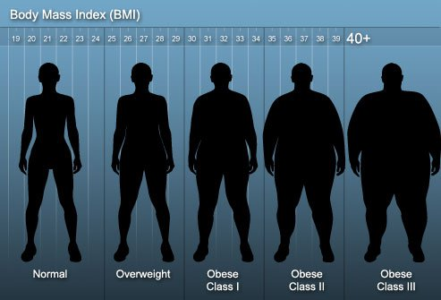 To qualify for weight loss surgery, you have to be more than 100 lbs. overweight or have certain medical conditions.