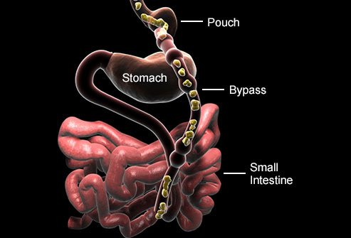 Your intestines must be inserted into your new stomach during gastric bypass surgery.