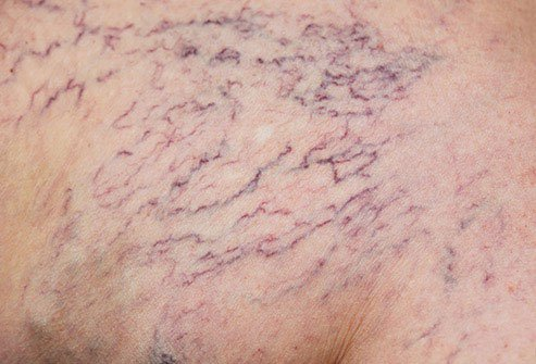 These small bundles of broken blood vessels often pop up on your legs, ankles, feet, and maybe even your face.