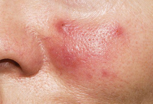 This skin condition is not blushing, although it may look like it.