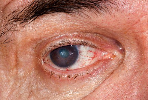Cataracts are more likely in people who have brown eyes.