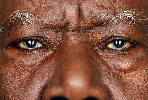 Multicolored eyes may be a sign of a genetic disorder that affects more than just the eyes.