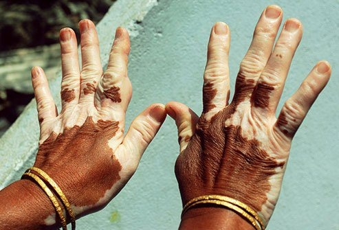 People who have brown eyes are more likely to suffer from vitiligo.