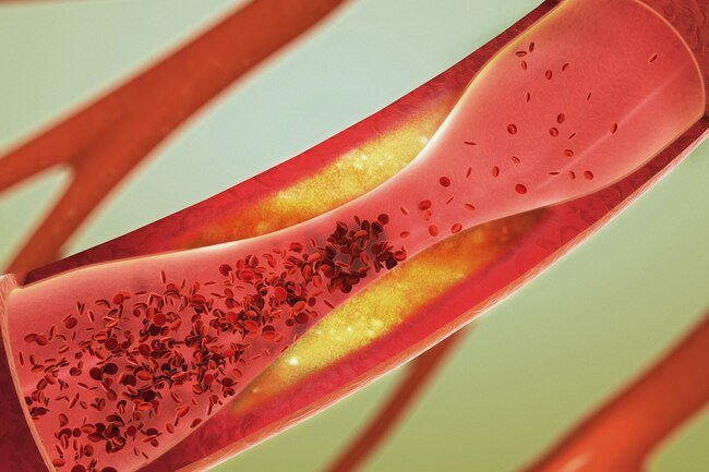 Causes of arrythmia include clogged or hardened arteries, high blood pressure, or issues with your heart's valves.