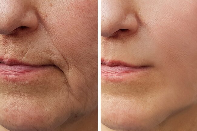 Have a goal in mind before getting facial fillers.