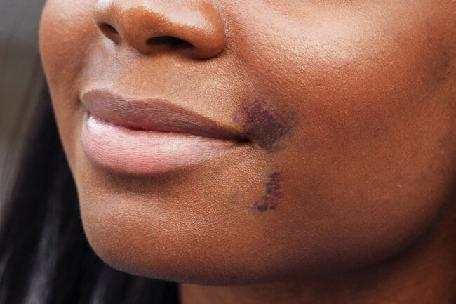 It is normal to have bruising, redness, mild bleeding, and discomfort after getting fillers.