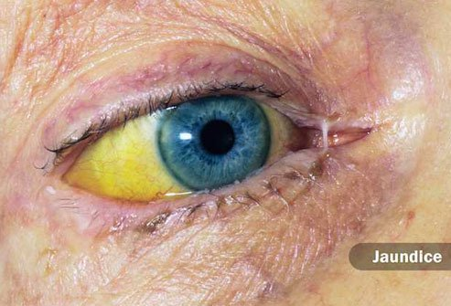 If the whites of your eyes look yellow instead, it's a good sign you have jaundice.