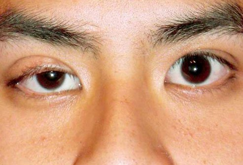 Most of the time, an eyelid that has fallen over time and hangs so low it blocks some of your sight can be fixed with cosmetic surgery.