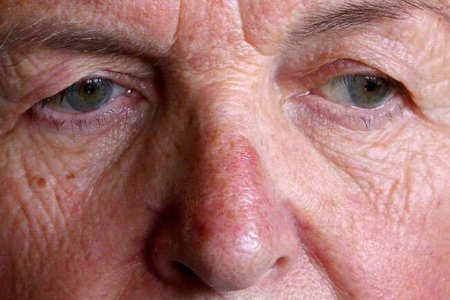Thick red skin on the nose may be a sign of rosacea.
