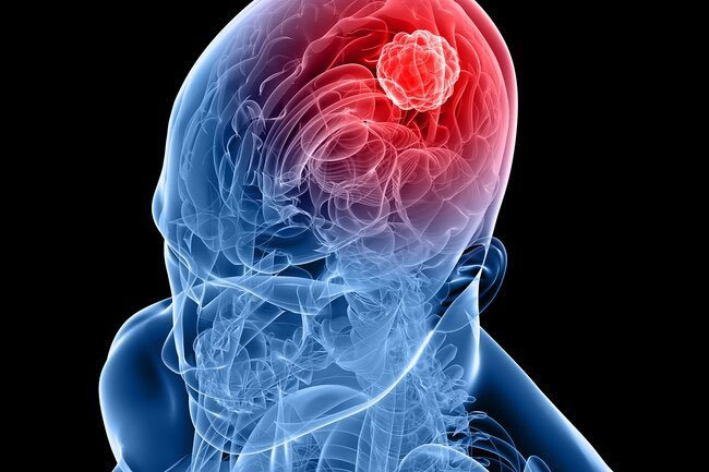 Phantom smells may be due to epilepsy, brain tumors, Parkinson's disease, and other disorders.