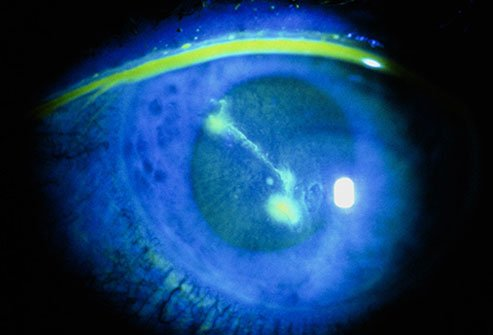 Dirt, sand, and contact lenses can scratch the outside of your eyeball, called the cornea.