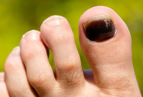 If your toenail turns black, it's most likely a bruise under the nail, technically called a subungual hematoma.