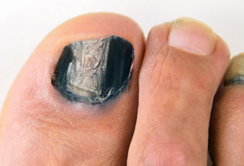Say you're not a runner, your shoes are roomy, and you're sure you haven't hurt your toe -- yet you have one or more black toenails.