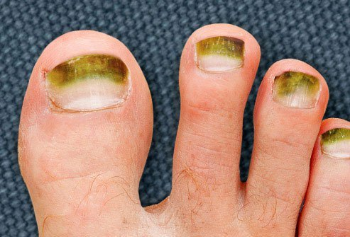 Unless you're wearing green nail polish, this is a color you don't want to see on your toenails.