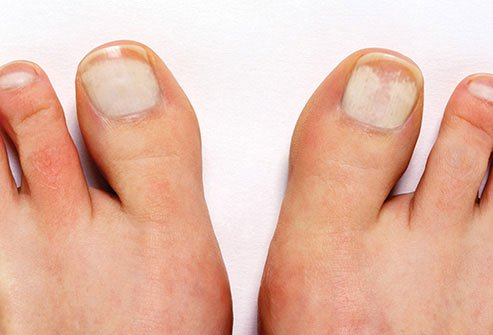 Another type of fungal infection is called proximal subungual onychomycosis.