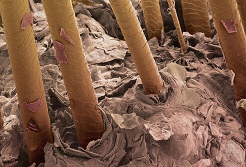 Hair on your head grows from follicles on the scalp.