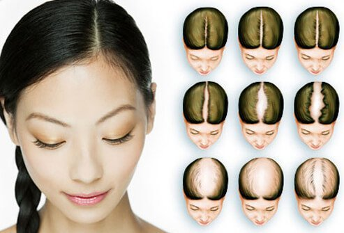 Female pattern hair loss often occurs around the midline of the part in the hair.