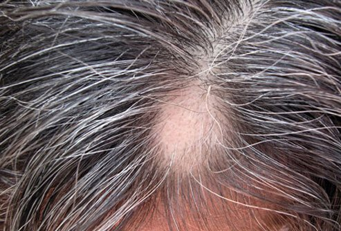 Alopecia areata causes hair loss in round patches.