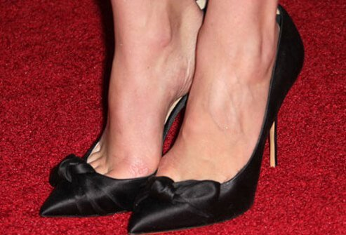 Photo of pointy toed shoes.