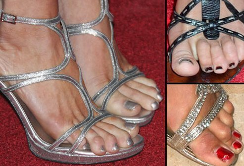 Photo of toe problems.