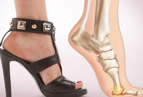 Photo of foot pain from heels.