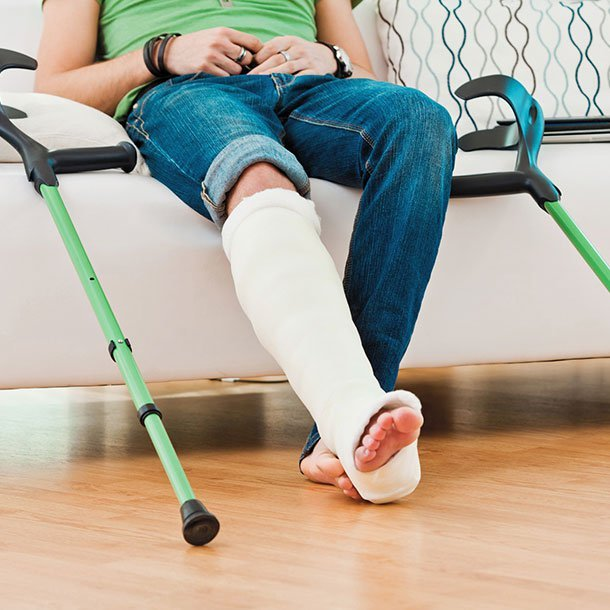 A fracture is a broken bone, and there are several types. These types of fractures include stable fracture, open (compound) fracture, transverse fracture, oblique fracture, and comminuted fracture.