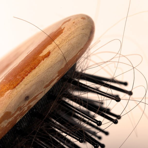 Patients recovering from COVID-19 may be susceptible to losing their hair.