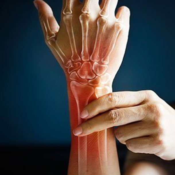 Rheumatoid Arthritis Ra Early Signs Symptoms Causes Treatment Diet