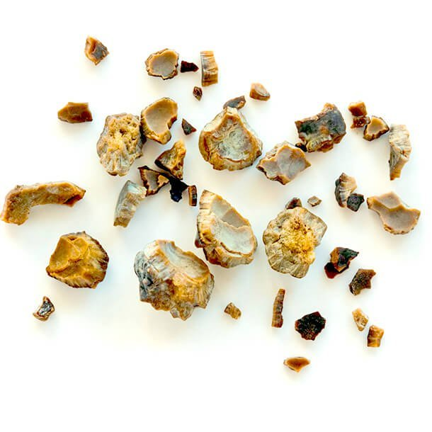 Kidney Stones Symptoms Causes And Treatment