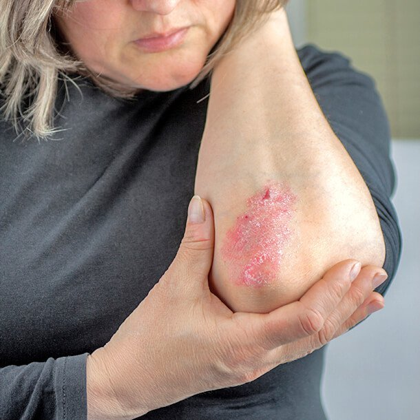 Psoriasis, an autoimmune skin condition, causes the skin to appear red, thick, scaly, and flaky. There are five types of psoriasis, which include plaque psoriasis, inverse psoriasis, guttate psoriasis, pustular psoriasis, and erythrodermic psoriasis.