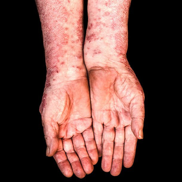 Symptoms of psoriatic arthritis are triggered by foods that cause inflammation. These include high-sugar foods, fatty red meat, refined carbohydrates (white bread, pasta, and white rice), soda/sugary beverages, processed foods (meats, fried foods, and refined carbohydrates), salty food, dairy products, and more.