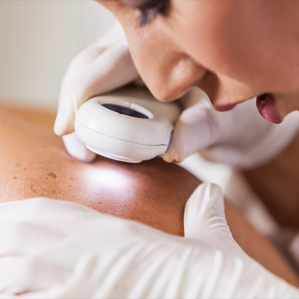 A skin biopsy is used to diagnose skin conditions, including skin cancer, by removing a piece of skin for further examination.