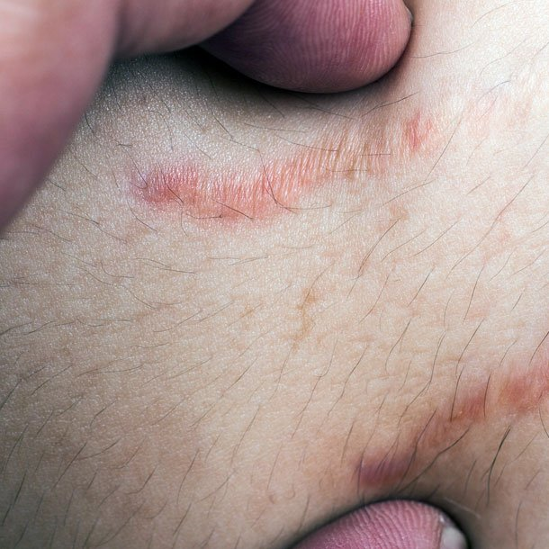 Stretch marks are linear streaks that appear on the skin due to the skin being overstretched. The lines at first are red and turn white over time.