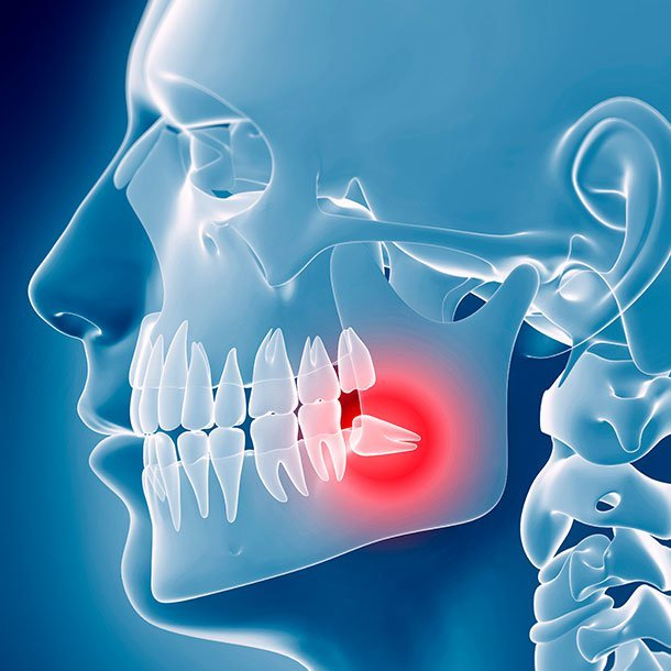 Hyperdontia is the condition of having an excess number of teeth. Impacted wisdom teeth count as extra teeth.