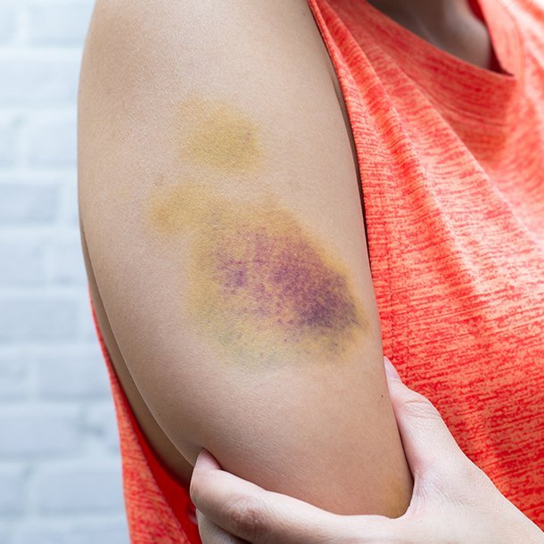 Bruises are a common injury and are not usually serious. See a doctor, however, when you experience other symptoms with bruising such as fever, extreme pain, joint swelling, inability to walk or move, it occurs for no reason, you bruise easily, the bruising is excessive, unusual bleeding elsewhere, you're taking blood thinners, or you think you may have broken a bone.