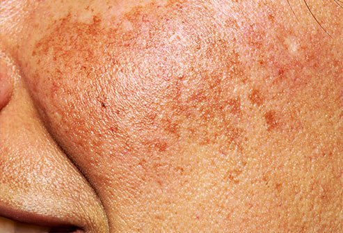 Brown and brownish-gray skin patches may be a symptom of melasma, also called chloasma.