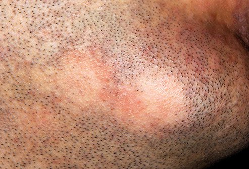 Facial hair loss from alopecia affects an estimated 6.8 million Americans.