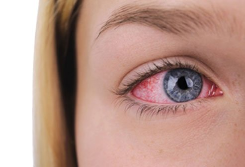 Bloodshot eyes may indicate a minor burst blood vessel or a more serious condition like glaucoma.