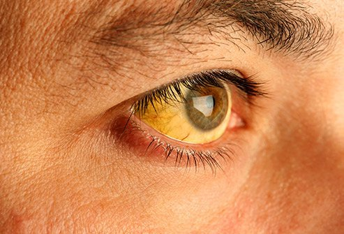 Yellow eyes and skin can be a sign of jaundice.