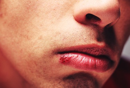 Cold sores affect two out of every three adults under age 50 worldwide.