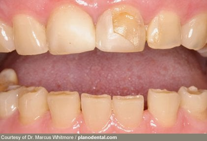 Stress can cause you to skip tooth brushing and flossing.