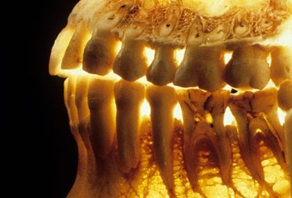 Osteoporosis can cause tooth loss and the rare, serious condition known as osteonecrosis.
